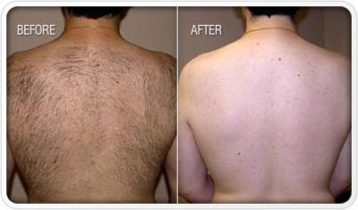 how-to-remove-unwanted-body-hair-advanceddermalaser